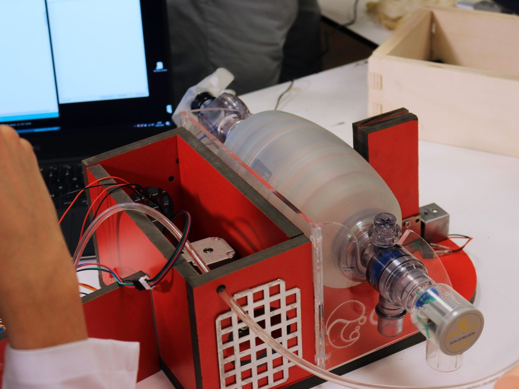 The Open Ventilator